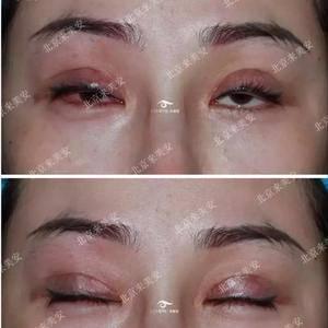 #双眼皮修复案例# 术前术后对比