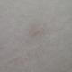 疤痕修复前后对比