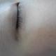 眼下边疤痕修复案例
