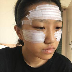 悦Mer_2035902647万家燕医院自体脂肪填充面部术后4天第3页图
