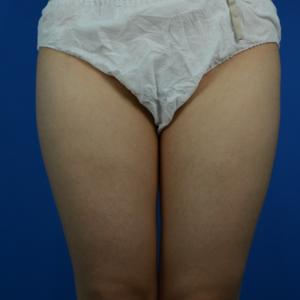 大腿吸脂,还你纤细美腿
