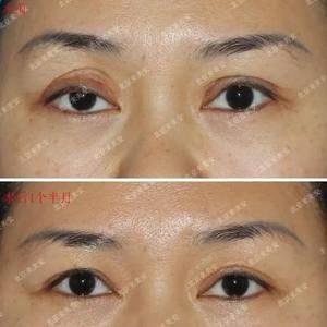 【双眼皮修复+右眼脂肪填充案例】