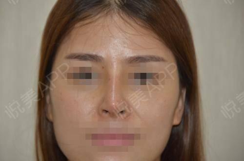 硅胶假体隆鼻术后9天_隆鼻术后9天_鼻部整形术后9天_悦Mer_5895535999分享图片1