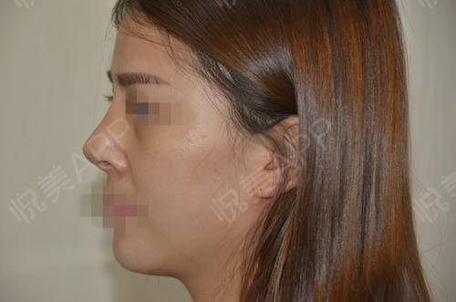 硅胶假体隆鼻术后9天_隆鼻术后9天_鼻部整形术后9天_悦Mer_5895535999分享图片2