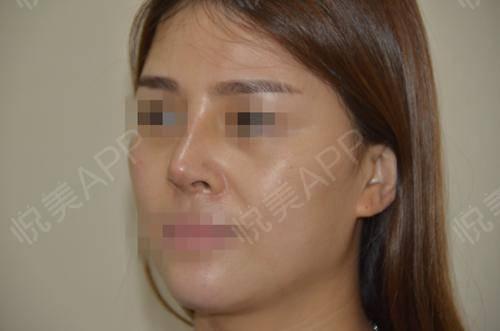 硅胶假体隆鼻术后9天_隆鼻术后9天_鼻部整形术后9天_悦Mer_5895535999分享图片3