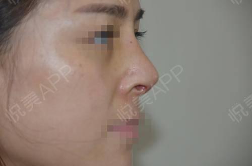 硅胶假体隆鼻术后9天_隆鼻术后9天_鼻部整形术后9天_悦Mer_5895535999分享图片6