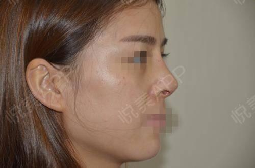 硅胶假体隆鼻术后9天_隆鼻术后9天_鼻部整形术后9天_悦Mer_5895535999分享图片4