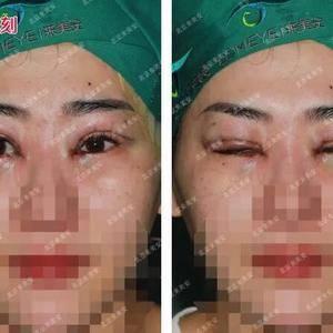 #双眼皮修复+内眼角修复案例#