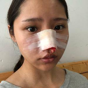 ╰→旅蚛亾鼻综合手术术后3天第3页图