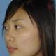 朋友们,我今天来复查了,脸上的疤痕的改变真的是看的见的,现在就像一点点小痘印一样,从原来那么深的疤痕...