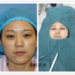哪种方法做双眼皮最适合你?
