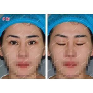 双眼皮➕内眼角➕自体脂肪填充