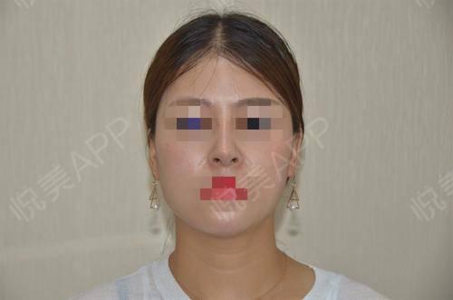 硅胶假体隆鼻术后17天_隆鼻术后17天_鼻部整形术后17天_悦Mer_5895535999分享图片1