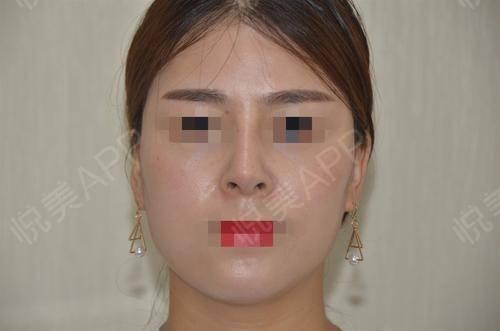 硅胶假体隆鼻术后17天_隆鼻术后17天_鼻部整形术后17天_悦Mer_5895535999分享图片2