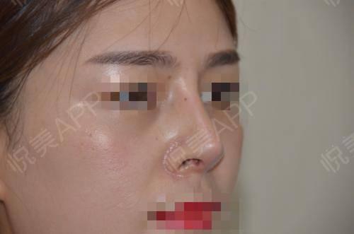 硅胶假体隆鼻术后17天_隆鼻术后17天_鼻部整形术后17天_悦Mer_5895535999分享图片4