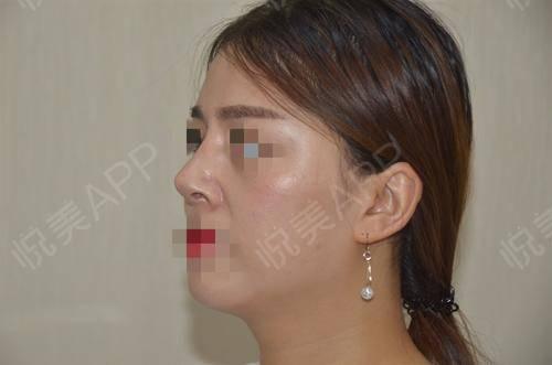 硅胶假体隆鼻术后17天_隆鼻术后17天_鼻部整形术后17天_悦Mer_5895535999分享图片5