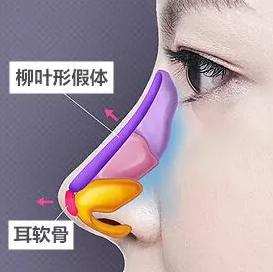 隆鼻失败最多可以修复几次?