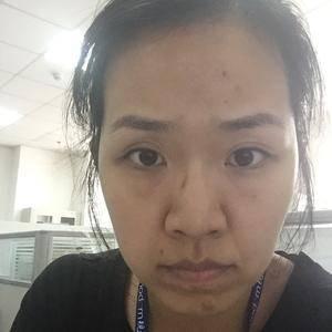 鼻综合+开眼角+脂肪填充,辣妈养成记
