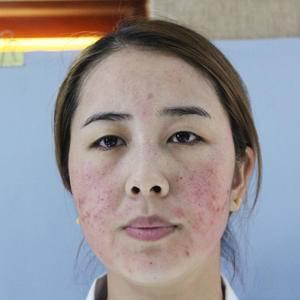 祛痘祛斑祛疤