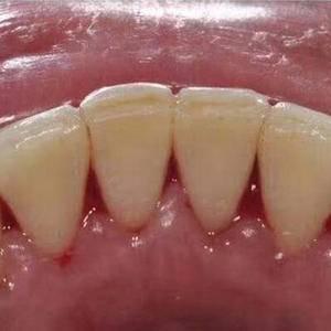洗牙+喷砂+抛光的组合 就白了好几个