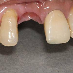 种植后的牙齿会做到跟自身牙齿基本一致