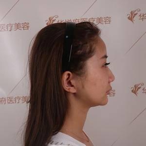 耳软骨复合隆鼻