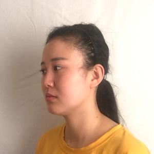 拯救我整张脸项目-半肋鼻综合&眼修复