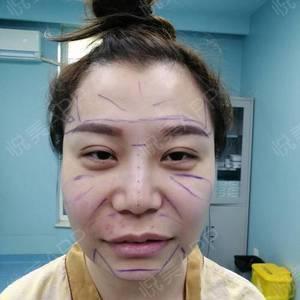 肉毒素瘦脸