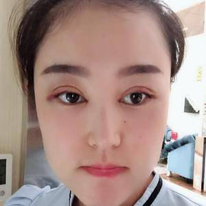 微信用户3992685820双眼皮手术第373页第3页图