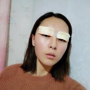 萌萌师姐切开双眼皮术后4天第3页图