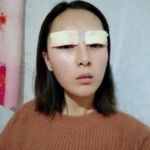 萌萌师姐切开双眼皮术后4天第1页图