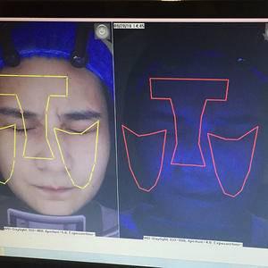 亚太激光祛晒斑