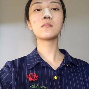悦Mer_9272401879隆鼻提升我的气质术后3天第1页图