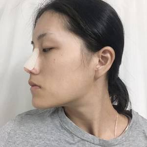 悦Mer_7104365035鼻子的重要性术后4天第2页图