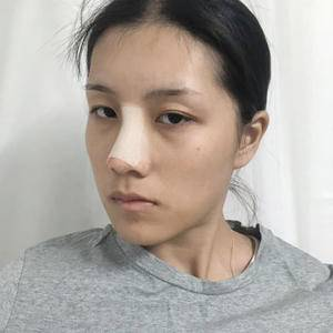 悦Mer_7104365035鼻子的重要性术后4天第3页图