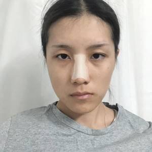 悦Mer_7104365035鼻子的重要性术后4天第1页图