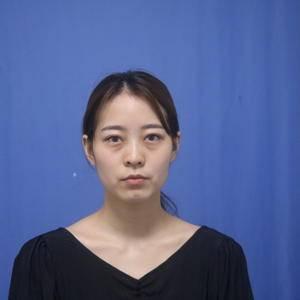 深圳健丽不开刀去眼袋+填泪沟