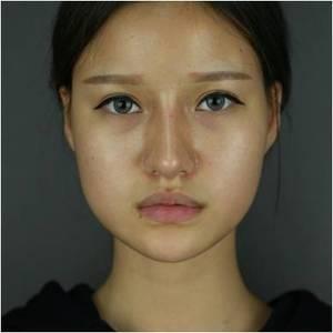 福州幼幼脸