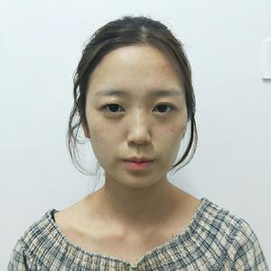 下颌角切除术+精雕增弧术+下颌体塑形