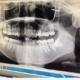 医生们都非常负责任,到院以后从接待到面诊都非常专业~建议想做的宝宝可以先拍一下检查,然后再下单~整牙齿...