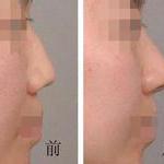 鼻背线条不流畅?驼峰鼻矫正美出新境界!