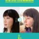 【北京亚韩医疗美容】王凤芹——筋膜隆鼻➕鼻基底术后