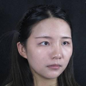 网红电眼双眼皮 常德切开双眼皮