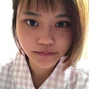 鼻综合+太阳穴填充