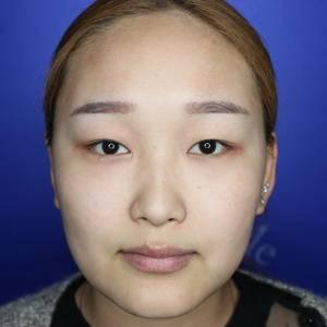 郑州星范做出来的双眼皮