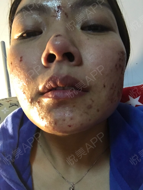祛斑术后2天_皮肤美容术后2天_淡淡的忧伤分享图片25
