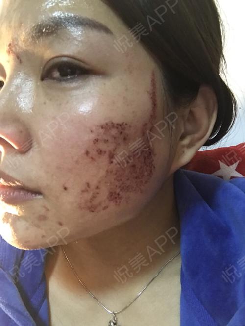 祛斑术后2天_皮肤美容术后2天_淡淡的忧伤分享图片27