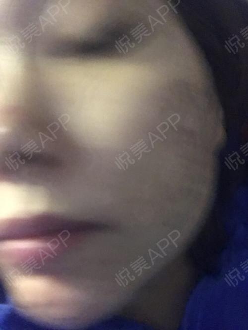 祛斑术后3天_皮肤美容术后3天_淡淡的忧伤分享图片4