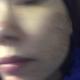 今天第三天了已经结痂啦、用了修复消炎面膜,修复受损肌肤套装,我怕皮肤干燥脱皮,还没有洗脸!一个礼拜再洗脸吧、拿纸巾擦了擦...