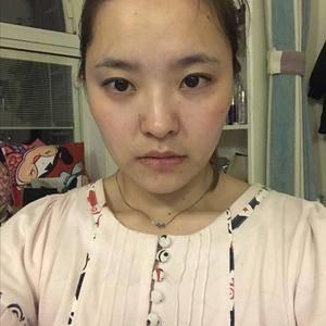 南京艺星自体脂肪丰卧蚕